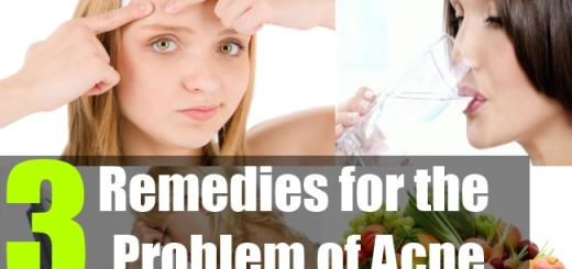 3 Remedies for the problem of acne