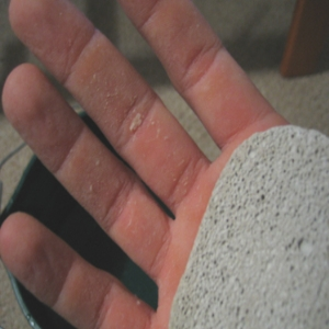 How to Get Rid Of a Callus on Your Hands
