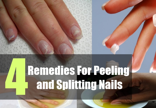 Natural Remedies For Healthy Nails