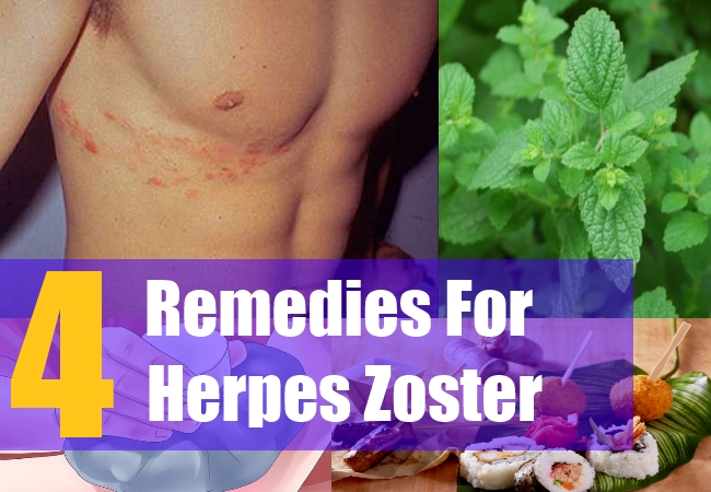 Can Lysol be used topically to help herpes