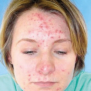 Treatment For Acne spots