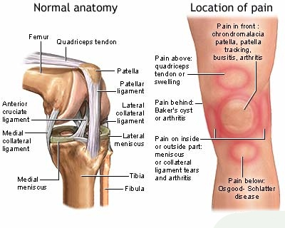 Few Common Knee Arthritis Symptoms