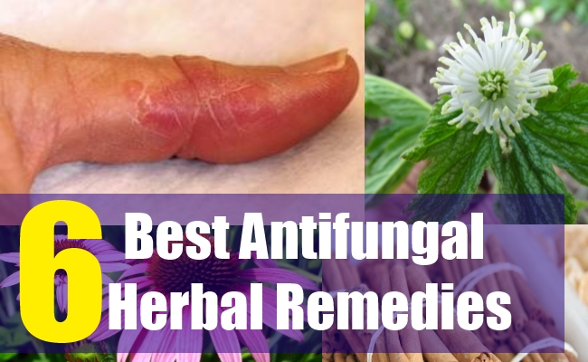 Natural remedies to fungal infection
