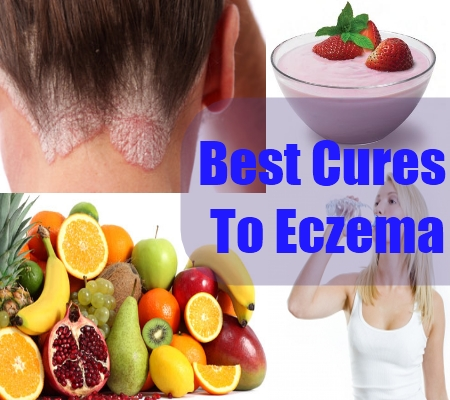 Best Foods For Eczema Sufferers
