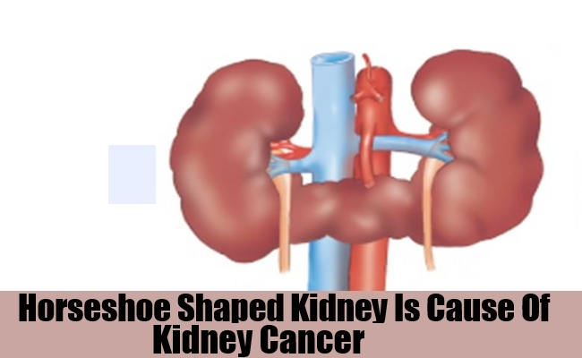 Horseshoe Shaped Kidney