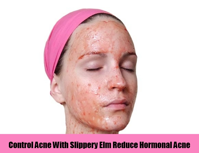 Control Acne With Slippery Elm