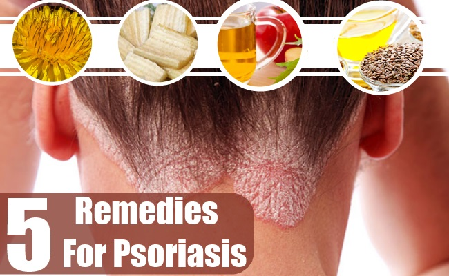 Psoriasis alternative meds 1