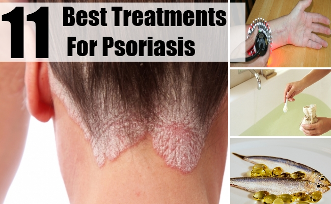 Cure Psoriasis with natural treatment 1