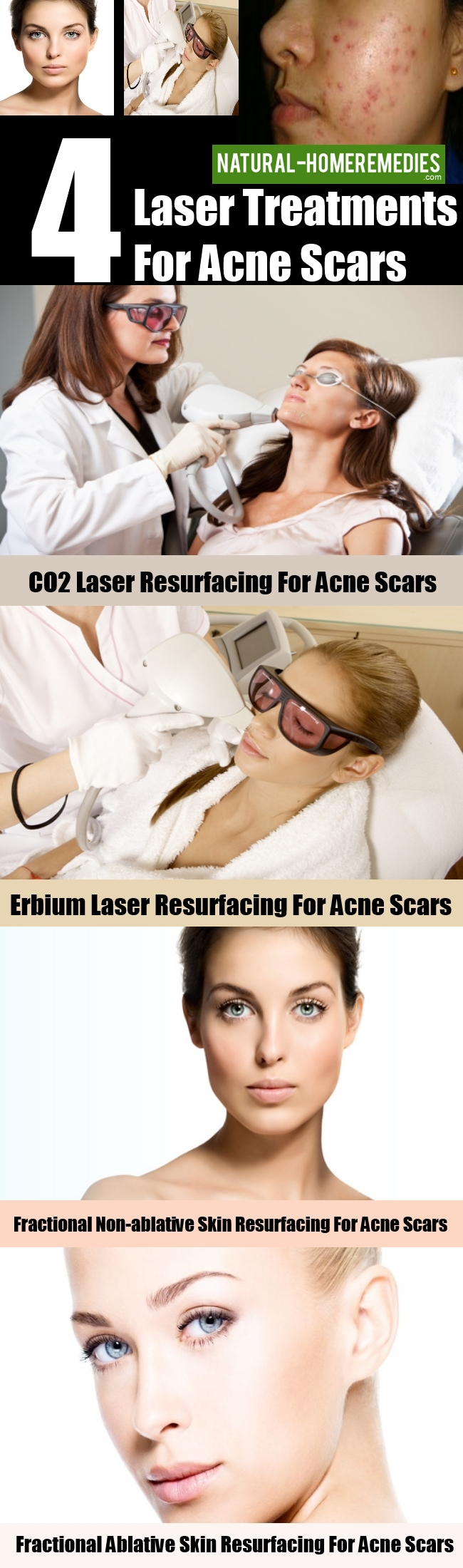 4 Laser Treatments For Acne Scars