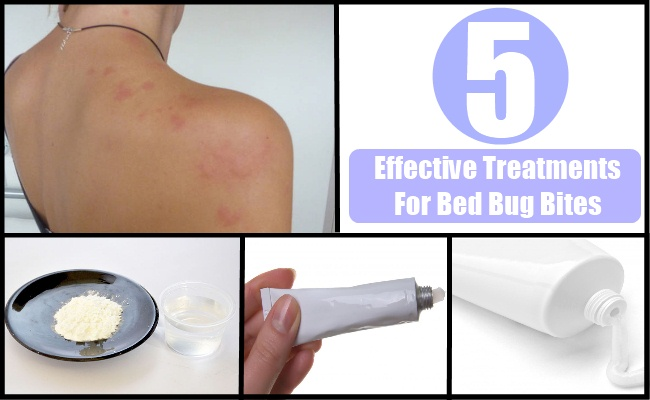 5 effective treatments for bed bug bites - how to treat bed bug