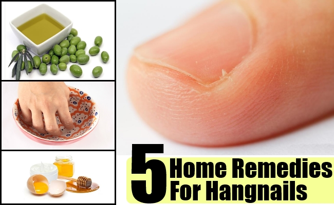 Natural Remedies For Hangnails