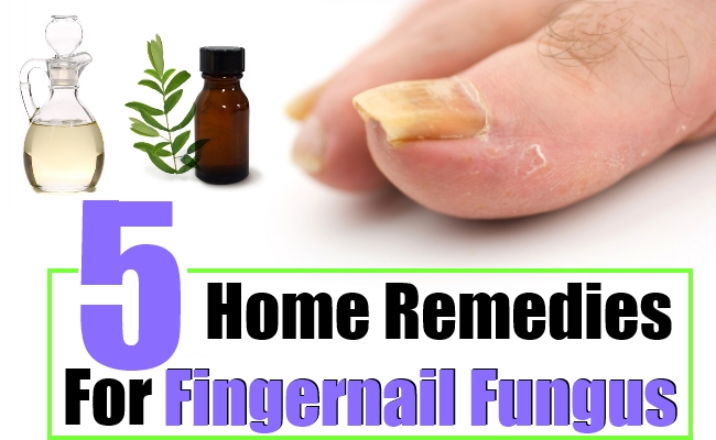 Fingernail Fungus Home Remedies, Natural Treatments And Cure ...