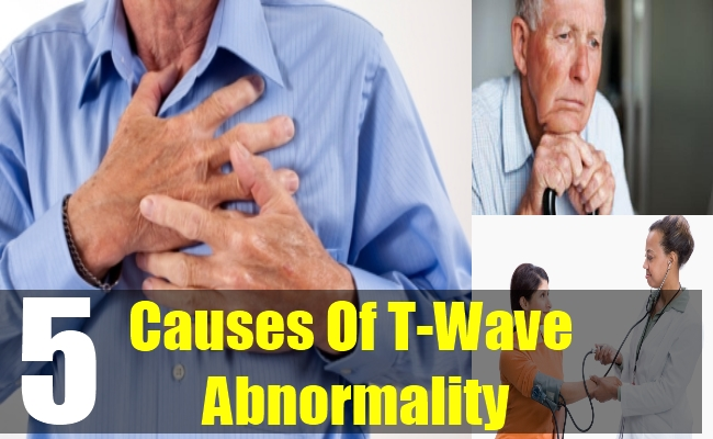 5 Causes Of T-Wave Abnormality