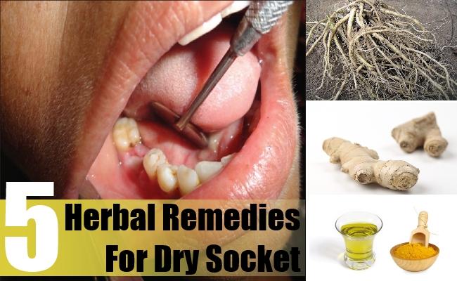 Dry Socket Cure Treatment Diy Dry Pictranslator